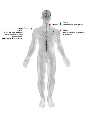 espasmos musculares