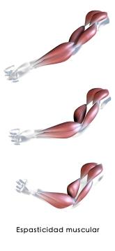 espasticidad muscular